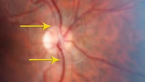 мушки перед глазами лечение